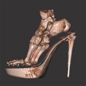 shoe foot skeleton fashion victim